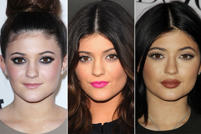 More And More People Are Getting Lip Injections, Thanks To Kylie Jenner