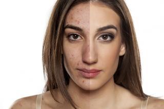 Get Better Skin In 2017