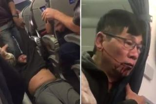 Man Was Violently Dragged Out Of An Overbooked United Airlines Flight