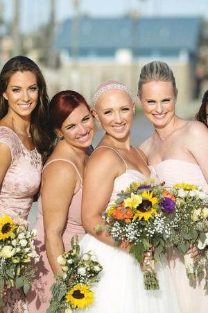 alopecia acceptance Kylie Bamberger
